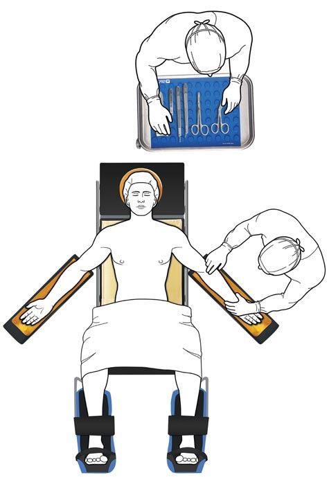 lithotomy positioning