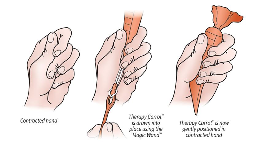 AliMed® Original Therapy Carrot™ Hand Contracture Orthosis Kit