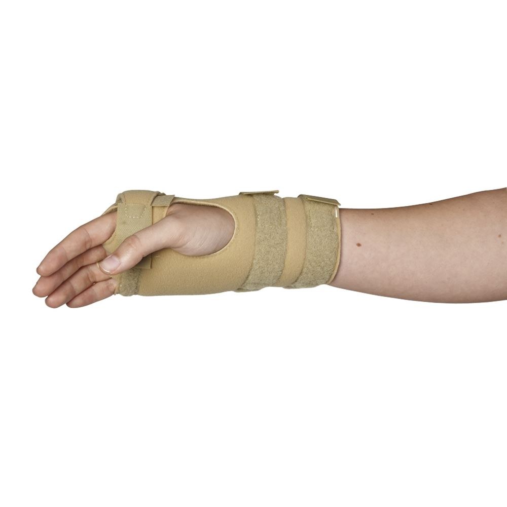 Arthritis Hand: Arthritis Ulnar Brace