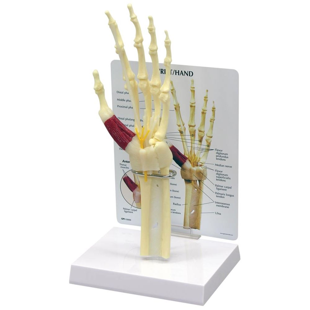 GPI Anatomicals Wrist/Hand Carpal Tunnel Syndrome Model