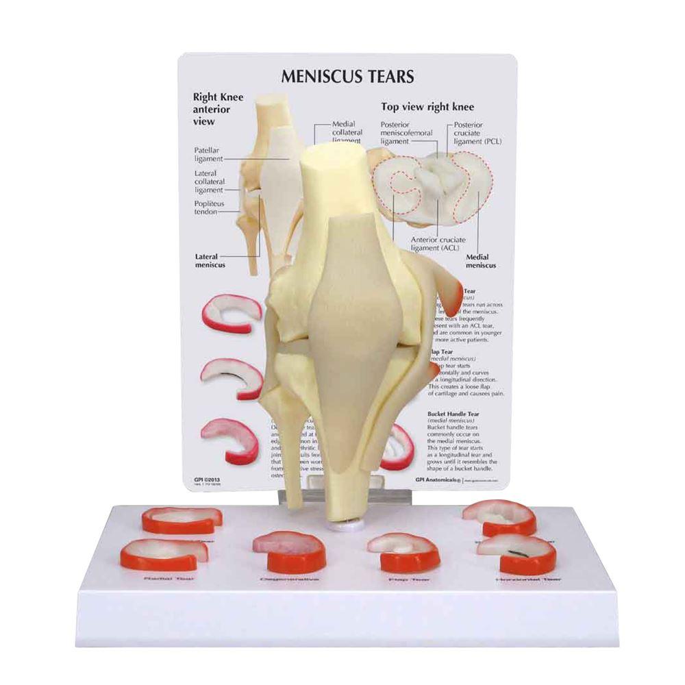 GPI Anatomicals Meniscus 6 Tears Model
